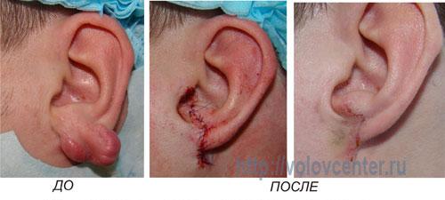 уплотнение в внутри уха прсле прокола прошивные