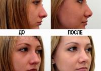 Пример ринопластики (до и после)