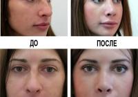 Ринопластика (до и после)
