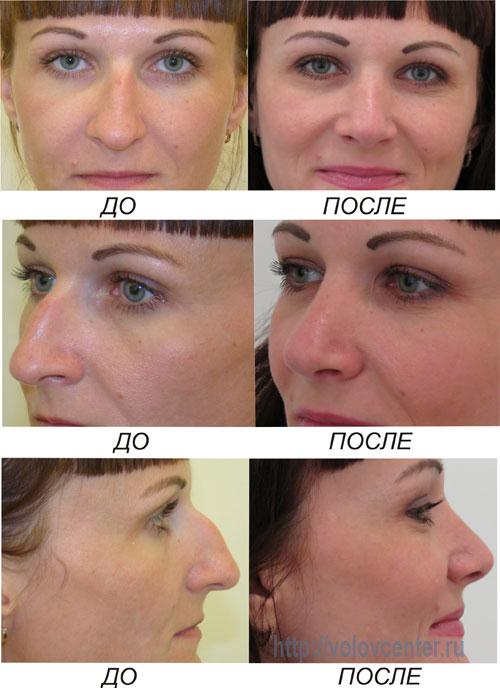 Пластическая хирургия по искривлению носовой перегородки фгуп центр пластической хирургии и косметологии