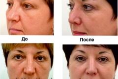 Эстетическая ринопластика (до и после)