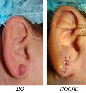 Иссечение келоидного рубца мочки уха