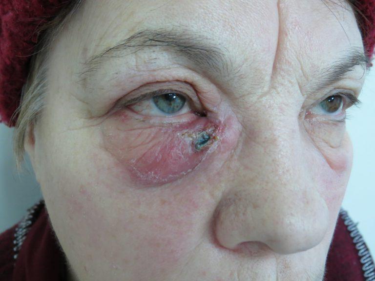 осложненный дакриоцистит. рецидив после дакриоцисториностомии наружным доступом
